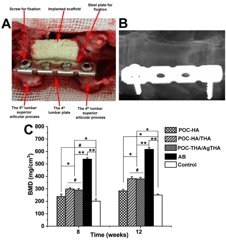 美国宾州州立大学杨健教授和南方医科大学郭金山教授《AFM》:柠檬酸基单宁桥连的复合骨材料促进腰椎骨融合