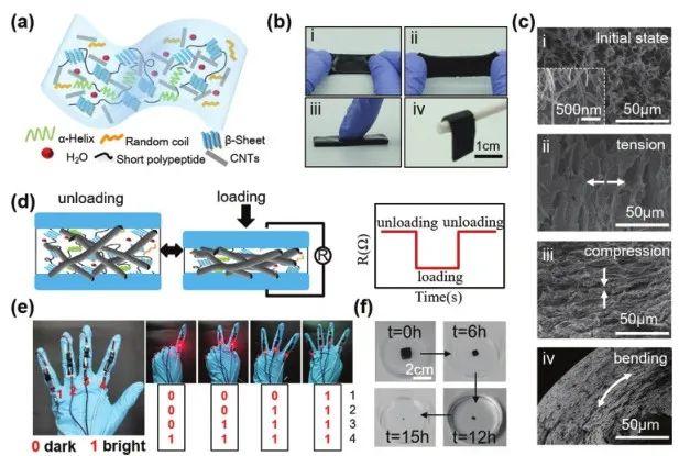 《Adv.Sci.》:可检测、治疗癫痫病的酶降解丝质水凝胶传感器