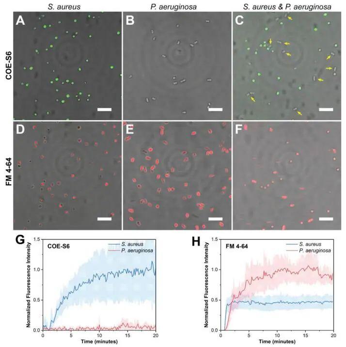 新加坡国立大学《AFM》:肉眼可见!共轭低聚电解质助力革兰氏细菌的区分