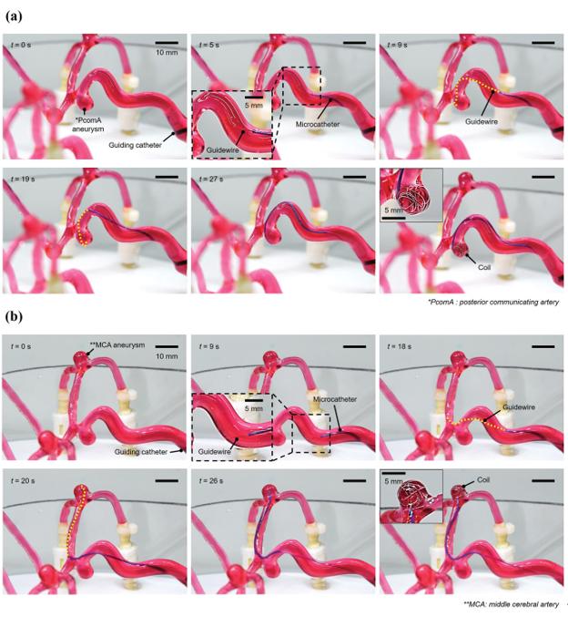 《AFM》:弹性体+水凝胶,制备高保真3D血管!有望用于术前仿真和案例培训