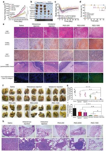 西南交大《AFM》:预防乳腺癌术后复发和转移的分级结构超细纤维装置