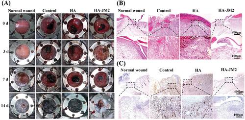 不惧肿瘤术后复发!上交大李海燕《AFM》:用于内部组织修复和抗术后粘连的Janus水凝胶湿粘合剂,