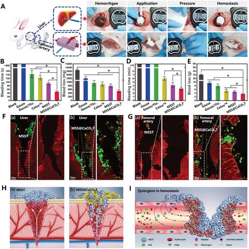 逆流而上,深度出血也能搞定!西南大学《AFM》:自推进Janus颗粒在大规模出血性穿孔和不规则伤口中的止血效果